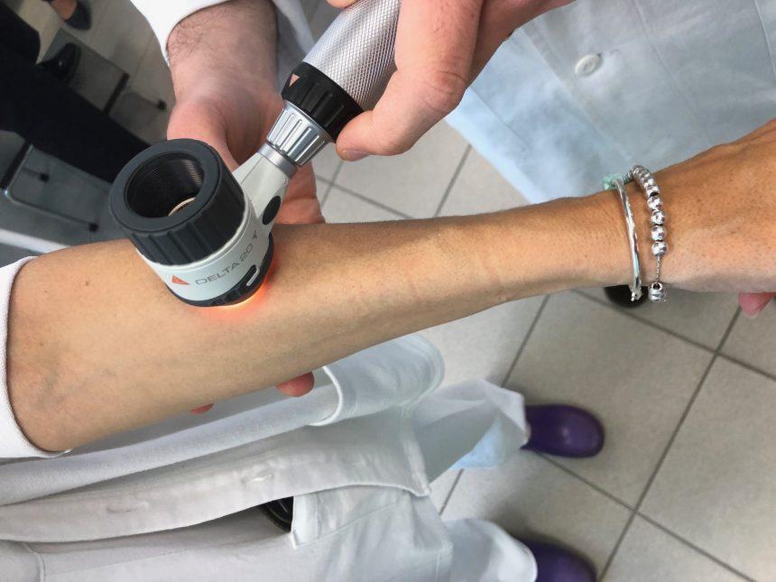 """Progetto Prosantè – Dermatologia: a Oulx il """"paziente zero"""""""